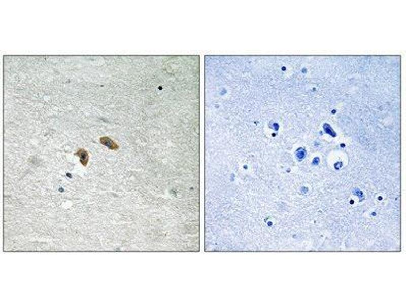Immunohistochemistry (IHC) image for anti-V-Raf-1 Murine Leukemia Viral Oncogene Homolog 1 (RAF1) (Internal Region), (pThr269) antibody (ABIN1847644)