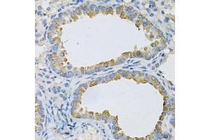 Image no. 2 for anti-Adaptor-Related Protein Complex 2, beta 1 Subunit (AP2B1) antibody (ABIN6569035)