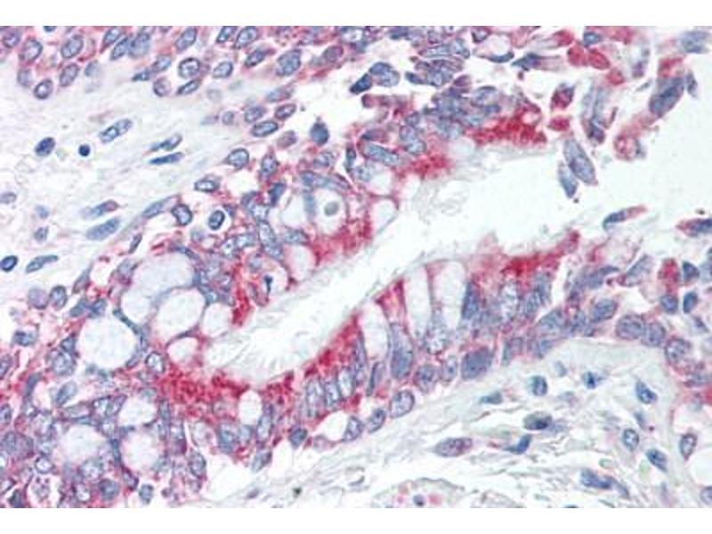 Immunohistochemistry (Paraffin-embedded Sections) (IHC (p)) image for anti-tyrosine 3-Monooxygenase/tryptophan 5-Monooxygenase Activation Protein, zeta Polypeptide (YWHAZ) (Ser58) antibody (ABIN6559927)