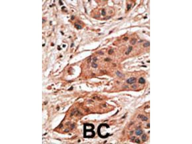 Immunohistochemistry (IHC) image for anti-B Cell Leukemia/lymphoma 2 Related Protein A1a (BCL2A1A) (AA 30-65), (BH3 Domain) antibody (ABIN388092)