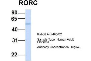 Image no. 2 for anti-RAR-Related Orphan Receptor C (RORC) (Middle Region) antibody (ABIN2777822)