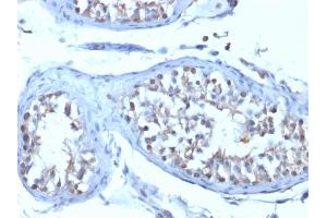 Image no. 3 for anti-V-Set Domain Containing T Cell Activation Inhibitor 1 (VTCN1) antibody (ABIN6940936)