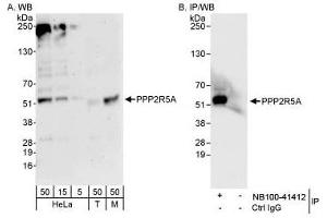 Western Blotting (WB) image for anti-Protein Phosphatase 2, Regulatory Subunit B', alpha (PPP2R5A) (AA 25-75) antibody (ABIN188581)