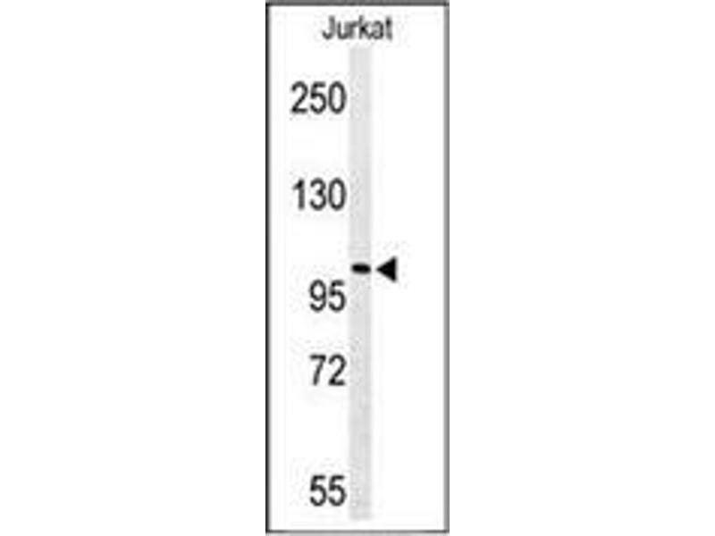Western Blotting (WB) image for anti-Pleckstrin Homology Domain Containing, Family H (With MyTH4 Domain) Member 2 (PLEKHH2) (AA 1057-1086), (C-Term) antibody (ABIN954202)