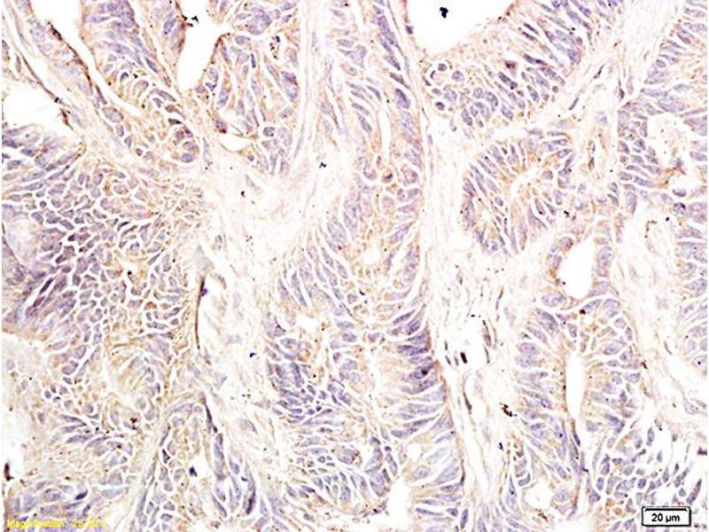 Immunohistochemistry (IHC) image for anti-DNA (Cytosine-5-)-Methyltransferase 3 beta (DNMT3B) (AA 1-50) antibody (ABIN727623)