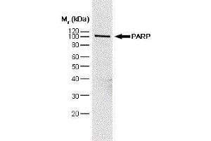 Western Blotting (WB) image for anti-PARP1 Antikörper (Poly (ADP-Ribose) Polymerase 1) (ABIN2476185)