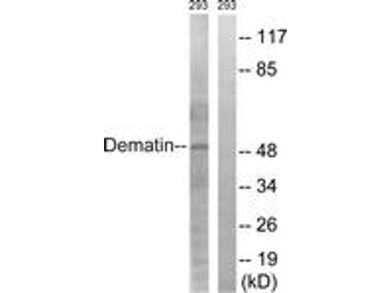 Western Blotting (WB) image for anti-erythrocyte Membrane Protein Band 4.9 (Dematin) (EPB49) (AA 356-405) antibody (ABIN1532596)