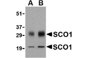 Western Blotting (WB) image for anti-SCO1 Cytochrome C Oxidase Assembly Protein (SCO1) (Middle Region) antibody (ABIN1031080)