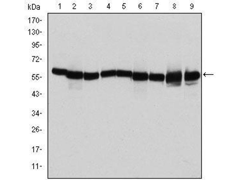 Western Blotting (WB) image for anti-Heat Shock 60kDa Protein 1 (Chaperonin) (HSPD1) antibody (ABIN4880329)