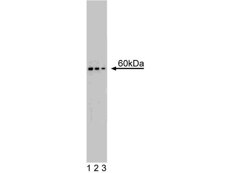 Western Blotting (WB) image for anti-Ribosomal Protein S6 Kinase, 70kDa, Polypeptide 1 (RPS6KB1) (AA 2-121) antibody (ABIN968442)