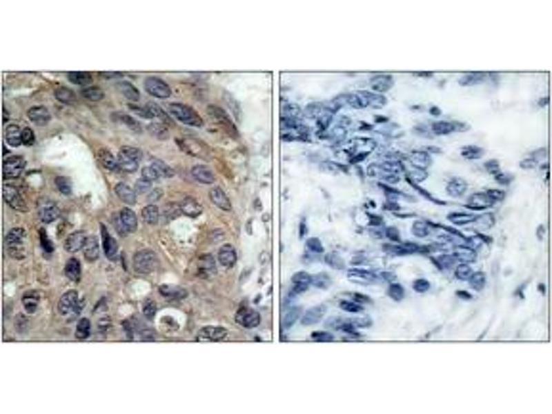 Immunohistochemistry (IHC) image for anti-SRC antibody (V-Src Sarcoma (Schmidt-Ruppin A-2) Viral Oncogene Homolog (Avian)) (pTyr529) (ABIN1531972)