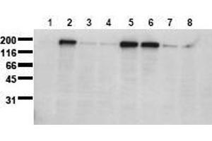 Western Blotting (WB) image for anti-Epidermal Growth Factor Receptor (EGFR) (pSer1071) antibody (ABIN126767)