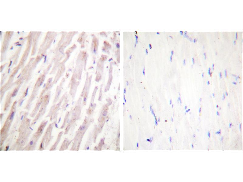 Image no. 1 for anti-erythrocyte Membrane Protein Band 4.9 (Dematin) (EPB49) (Ser403) antibody (ABIN1576053)