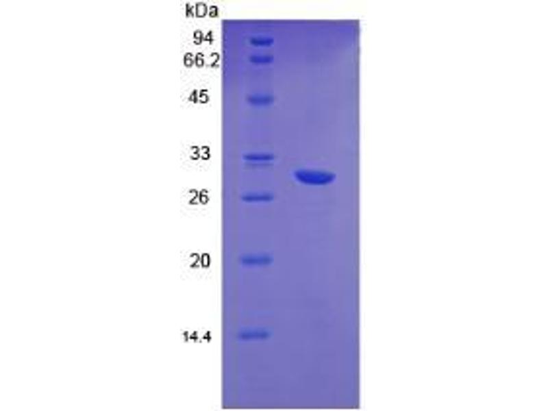 Hepatocyte Growth Factor (Hepapoietin A, Scatter Factor) (HGF) CLIA Kit (3)