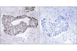Immunohistochemistry (IHC) image for anti-GATA Binding Protein 1 (Globin Transcription Factor 1) (GATA1) (AA 109-158) antibody (ABIN1532881)