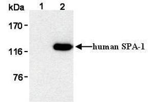 Image no. 1 for anti-Signal-Induced Proliferation-Associated 1 (SIPA1) antibody (ABIN1449259)