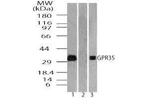 Image no. 1 for anti-G Protein-Coupled Receptor 35 (GPR35) (AA 275-325) antibody (ABIN960192)
