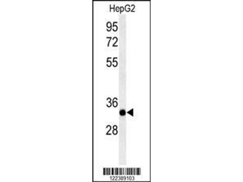 Western Blotting (WB) image for anti-ACER3 antibody (Alkaline Ceramidase 3) (AA 224-250) (ABIN652900)