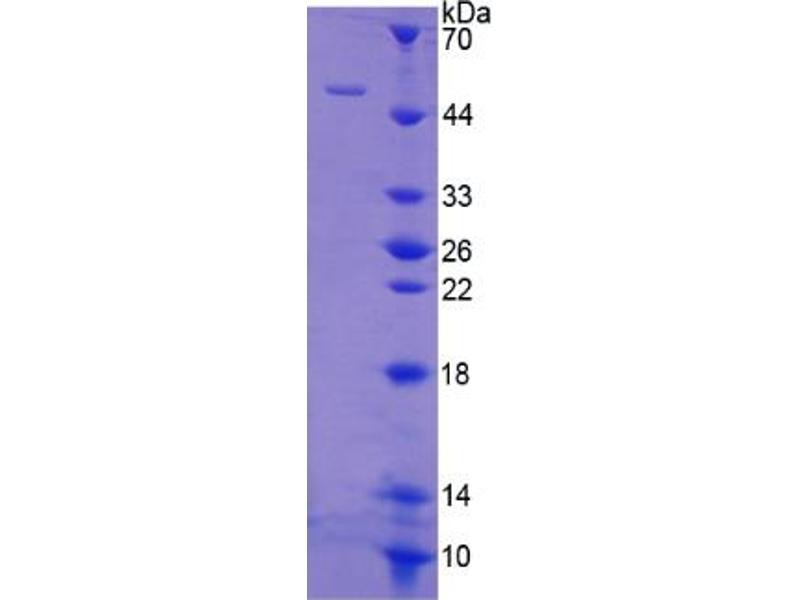 Fas (TNF Receptor Superfamily, Member 6) (FAS) ELISA Kit