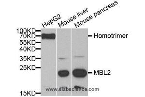 Western Blotting (WB) image for anti-MBL2 antibody (Mannose-Binding Lectin (Protein C) 2, Soluble) (ABIN2406672)