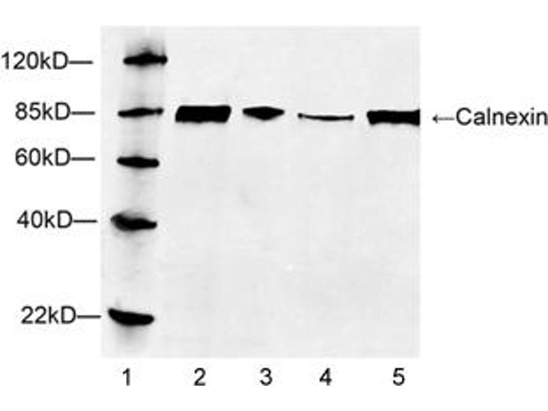 Western Blotting (WB) image for anti-Calnexin (CANX) (C-Term) antibody (ABIN1574057)