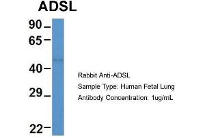 Image no. 2 for anti-Adenylosuccinate Lyase (ADSL) (Middle Region) antibody (ABIN2774275)