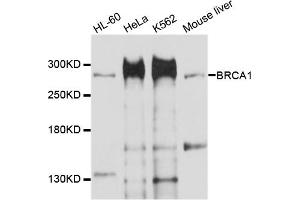 Image no. 1 for anti-Breast Cancer 1 (BRCA1) antibody (ABIN6567052)