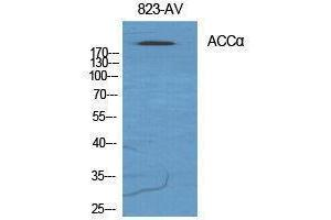Image no. 1 for anti-Acetyl-CoA Carboxylase alpha (ACACA) (Ser122) antibody (ABIN3183142)