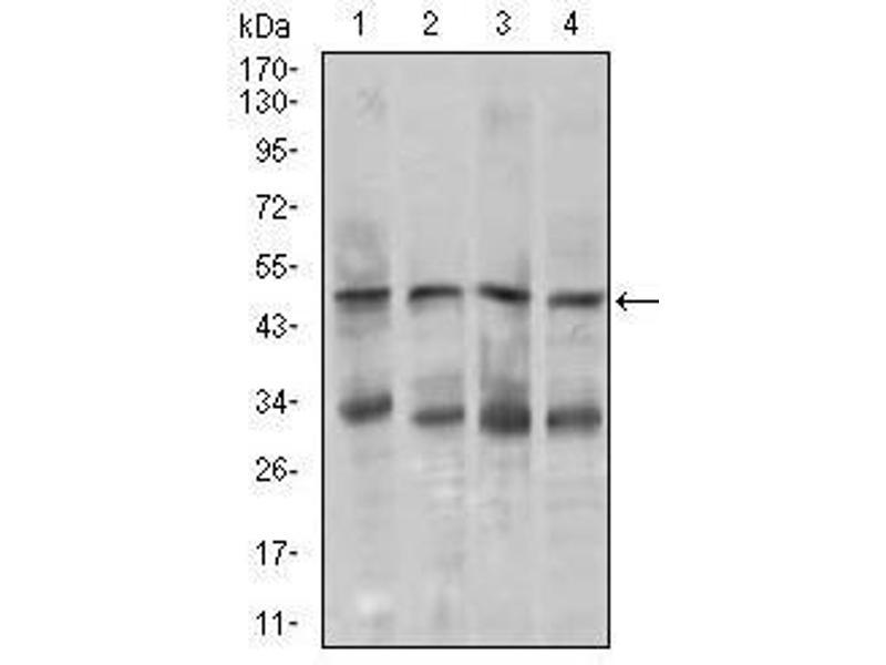 Western Blotting (WB) image for anti-Chromogranin A (CHGA) antibody (ABIN4880257)