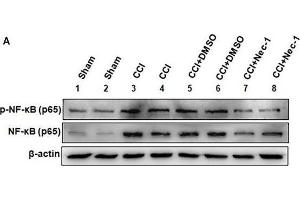 Image no. 6 for anti-Nuclear Factor-KB P65 (NFkBP65) (pSer536) antibody (ABIN730528)