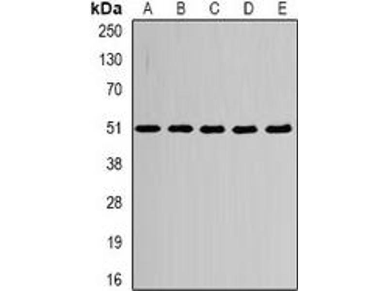 Western Blotting (WB) image for anti-Tubulin, alpha 4a (TUBA4A) antibody (ABIN2966413)