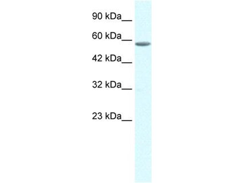 Western Blotting (WB) image for anti-General Transcription Factor IIE, Polypeptide 1, alpha 56kDa (GTF2E1) (C-Term) antibody (ABIN184330)