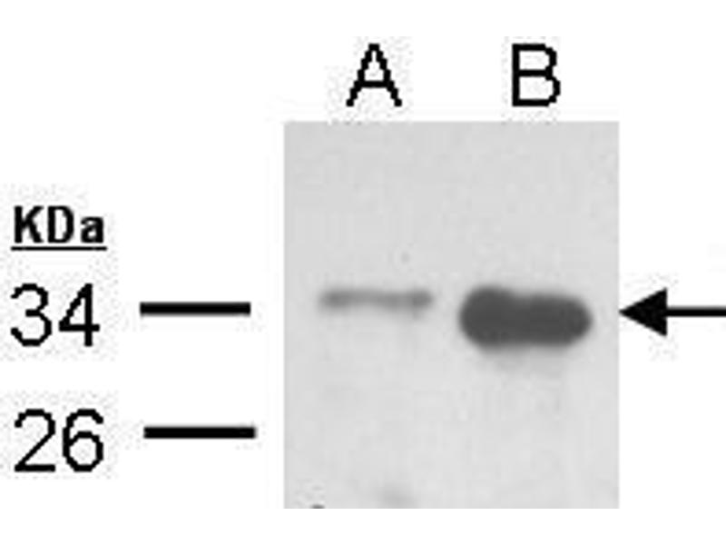 Western Blotting (WB) image for anti-TRADD antibody (TNFRSF1A-Associated Via Death Domain) (ABIN2497517)