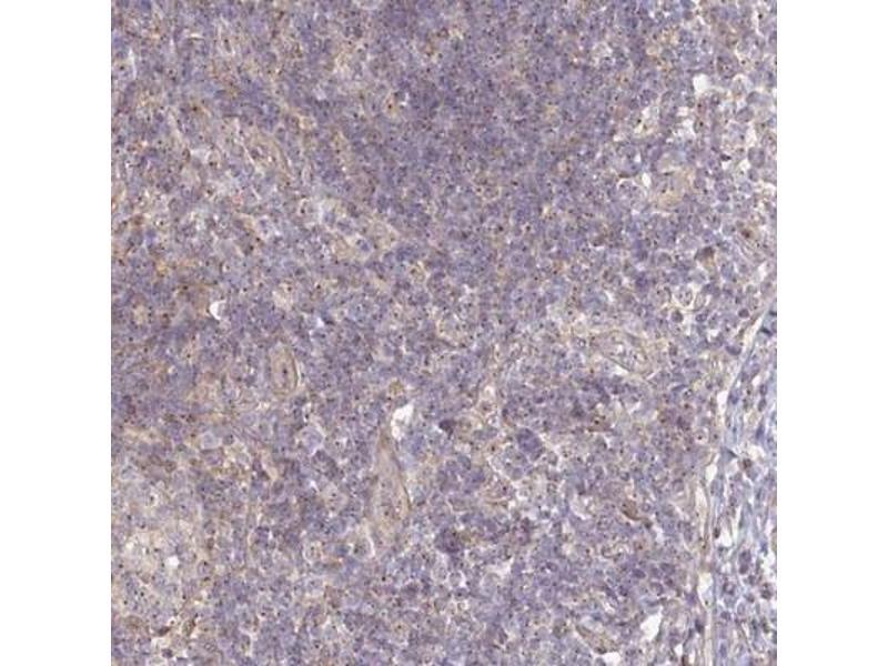 Immunohistochemistry (IHC) image for anti-Ninein (GSK3B Interacting Protein) (NIN) antibody (ABIN4339743)