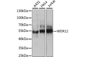 Image no. 1 for anti-WD Repeat Domain 12 (WDR12) antibody (ABIN6568720)