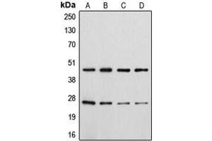 Western Blotting (WB) image for anti-CD28 antibody (CD28) (C-Term) (ABIN2704607)