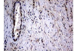 Image no. 2 for anti-RAS Guanyl Releasing Protein 3 (Calcium and DAG-Regulated) (RASGRP3) (AA 380-690) antibody (ABIN1491477)