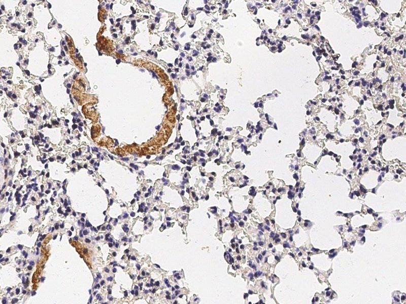 Immunohistochemistry (Paraffin-embedded Sections) (IHC (p)) image for anti-Discoidin Domain Receptor tyrosine Kinase 2 (DDR2) (AA 1-399) antibody (ABIN2001101)