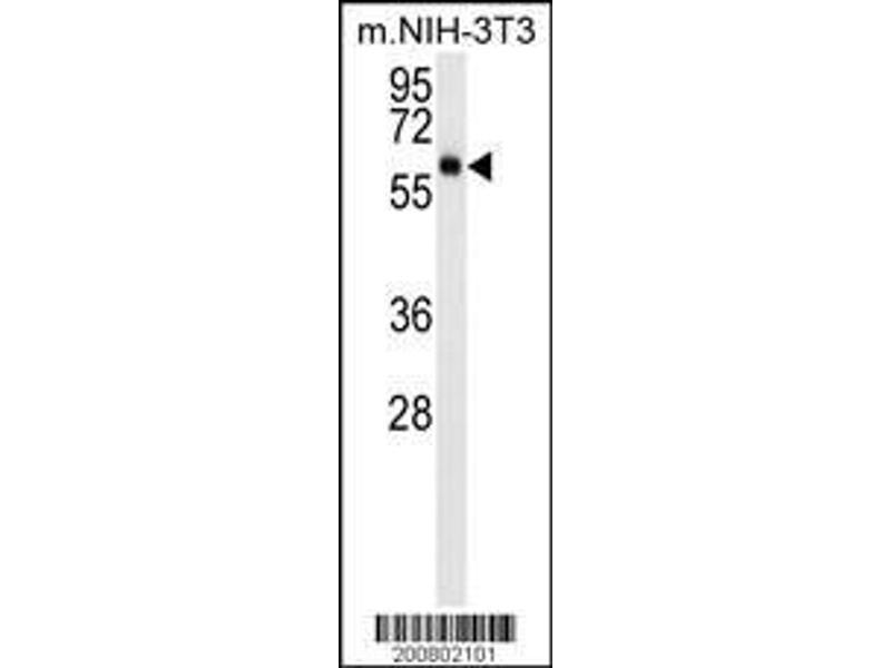 Western Blotting (WB) image for anti-AKT3 antibody (V-Akt Murine Thymoma Viral Oncogene Homolog 3 (Protein Kinase B, Gamma)) (ABIN659026)