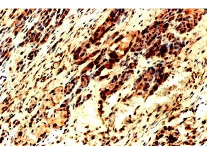 Immunohistochemistry (IHC) image for anti-Kinase insert Domain Receptor (A Type III Receptor tyrosine Kinase) (KDR) (C-Term) antibody (ABIN152109)