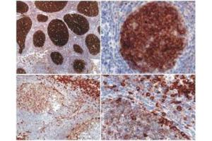 Immunohistochemistry (IHC) image for anti-phosphoprotein Associated with Glycosphingolipid Microdomains 1 (PAG1) (AA 235-280) antibody (ABIN268975)