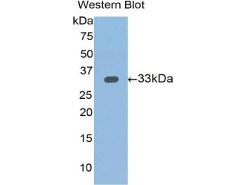 Slit Homolog 1 (Drosophila) (SLIT1) ELISA Kit (2)