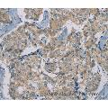 Immunohistochemistry of Human breast cancer using RAD51 Polyclonal Antibody at dilution of 1:40
