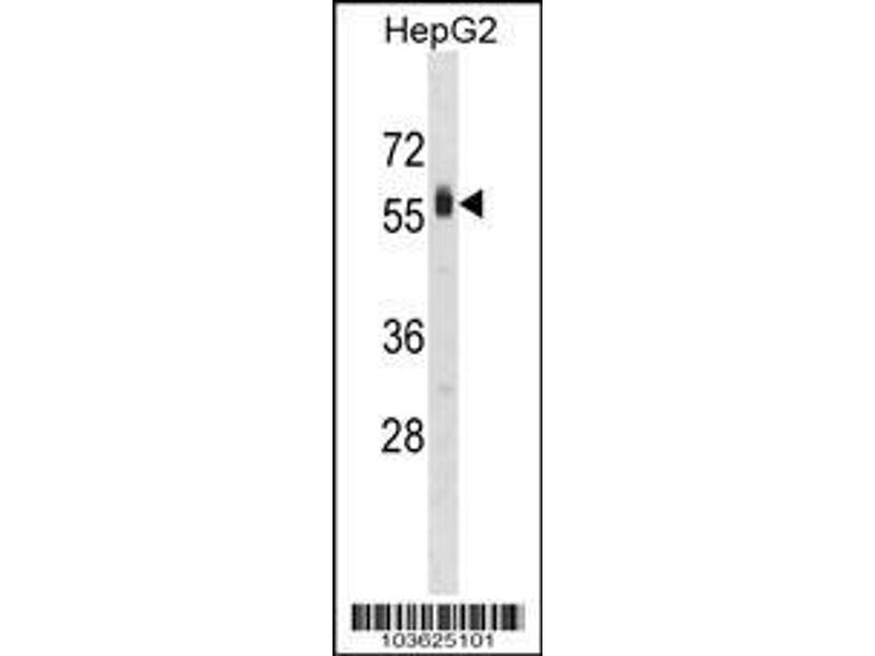Western Blotting (WB) image for anti-Sphingosine Kinase 2 (SPHK2) (AA 590-620), (C-Term) antibody (ABIN391349)