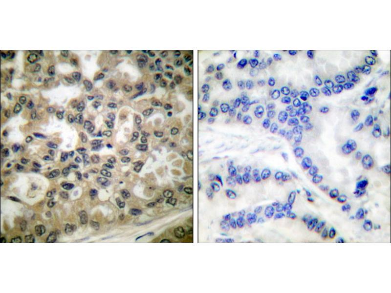 Immunohistochemistry (IHC) image for anti-NFKBIB antibody (Nuclear Factor of kappa Light Polypeptide Gene Enhancer in B-Cells Inhibitor, beta) (pSer23) (ABIN2449155)