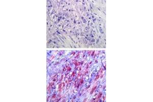 Immunohistochemistry (Paraffin-embedded Sections) (IHC (p)) image for anti-Toll-Like Receptor 4 (TLR4) antibody (ABIN252522)