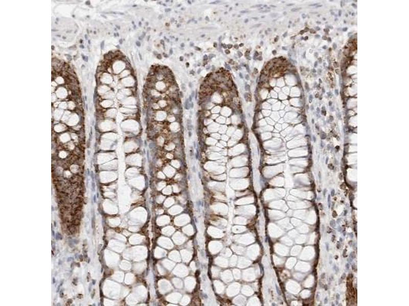 Immunohistochemistry (Paraffin-embedded Sections) (IHC (p)) image for anti-ATPase Inhibitory Factor 1 (ATPIF1) antibody (ABIN4282372)