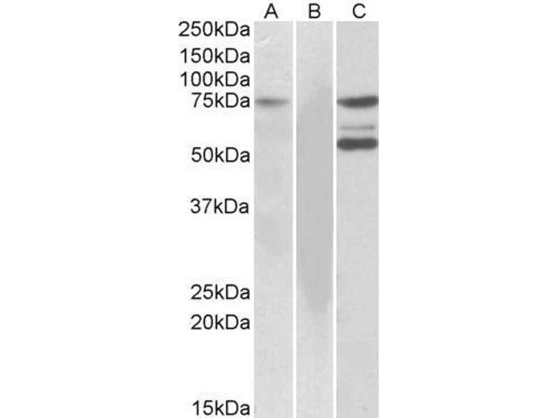 Image no. 3 for anti-IL2-Inducible T-Cell Kinase (ITK) (C-Term) antibody (ABIN184605)