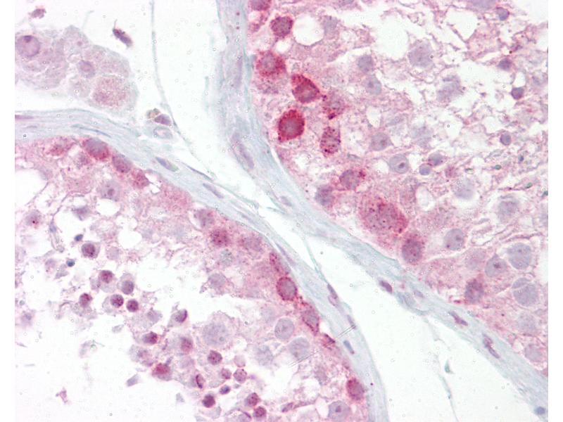 Immunohistochemistry (IHC) image for anti-Wingless-Type MMTV Integration Site Family, Member 2B (WNT2B) (N-Term) antibody (ABIN958403)