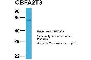 Western Blotting (WB) image for anti-Core-binding Factor, Runt Domain, alpha Subunit 2, Translocated To, 3 (CBFA2T3) (N-Term) antibody (ABIN1105706)